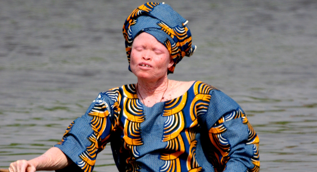 Albino's en rituele moorden